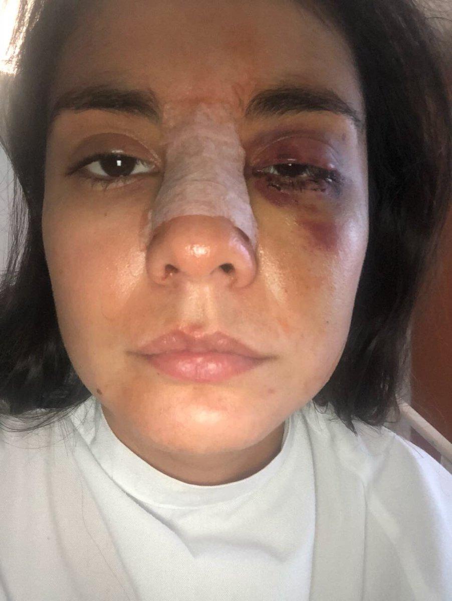 Eileen Moreno, después de la agresión.